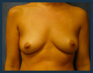 Breast Augmentation Before & After Patient #424