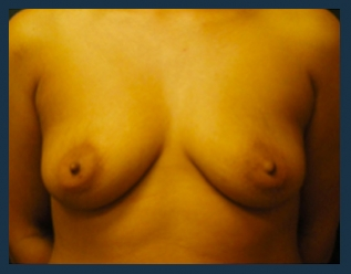 Breast Augmentation Before & After Patient #438