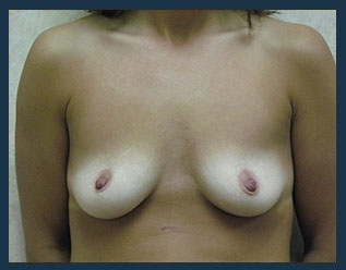 Breast Augmentation Before & After Patient #497