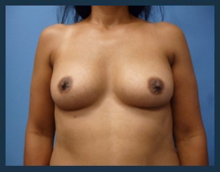 Breast Augmentation Before & After Patient #541