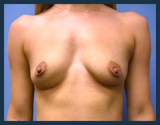 Breast Augmentation Before & After Patient #560