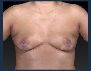 Breast Augmentation Before & After Patient #563