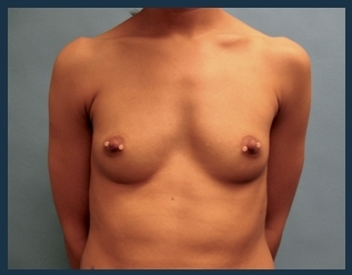 Breast Augmentation Before & After Patient #587