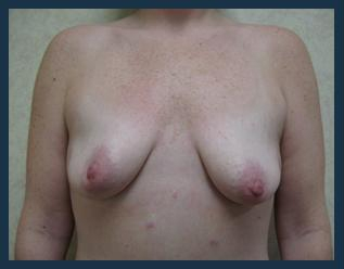 Breast Lift Before & After Patient #641