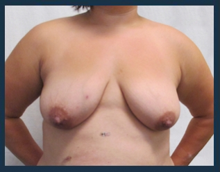 Breast Lift Before & After Patient #652