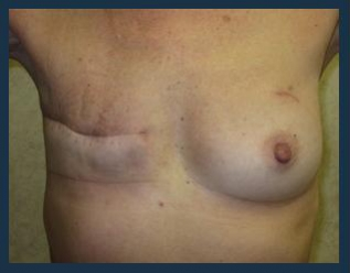 Breast Reconstruction Before & After Patient #671