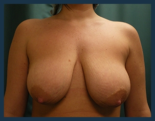 Breast Reduction Before & After Patient #686