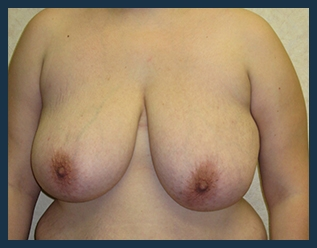 Breast Reduction Before & After Patient #697