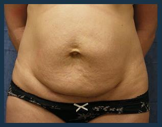 Tummy Tuck Before & After Patient #830