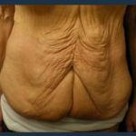 Tummy Tuck Before & After Patient #842
