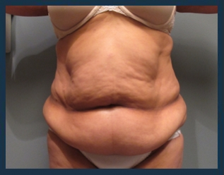 Tummy Tuck Before & After Patient #885