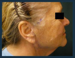 Facelift Before & After Patient #952
