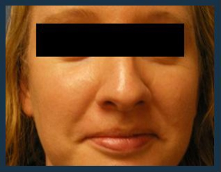 Rhinoplasty Before & After Patient #979