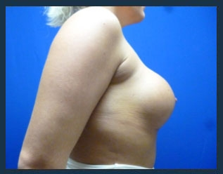 Breast Augmentation Before & After Patient #511