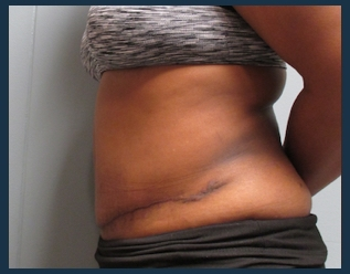 Tummy Tuck Before & After Patient #890