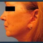 Facelift Before & After Patient #957