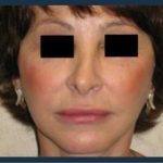 Facelift Before & After Patient #964
