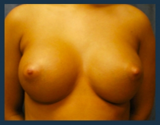 Breast Augmentation Before & After Patient #449