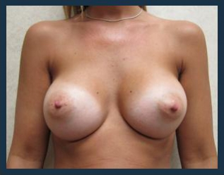 Breast Augmentation Before & After Patient #471