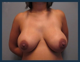 Breast Augmentation Before & After Patient #544