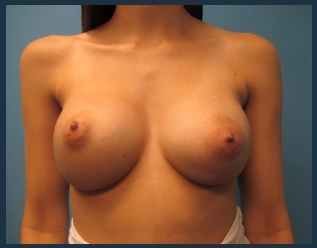 Breast Augmentation Before & After Patient #554