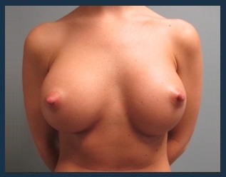 Breast Augmentation Before & After Patient #566
