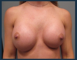 Breast Augmentation Before & After Patient #575