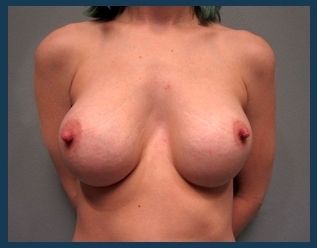 Breast Augmentation Before & After Patient #599