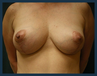 Breast Lift Before & After Patient #618