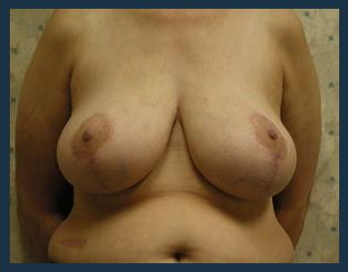 Breast Lift Before & After Patient #635