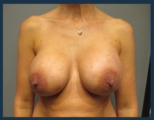 Breast Implant Revision Before & After Patient #659