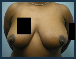 Breast Reduction Before & After Patient #708