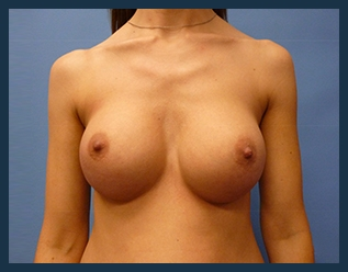 Breast Augmentation Before & After Patient #365