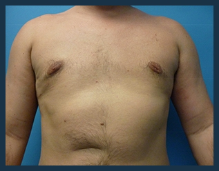 Gynecomastia Treatment Before & After Patient #724
