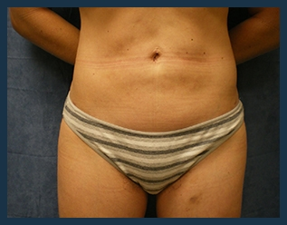 Liposuction Before & After Patient #748