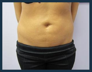 SmartLipo Before & After Patient #829