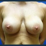 Breast Augmentation Before & After Patient #376