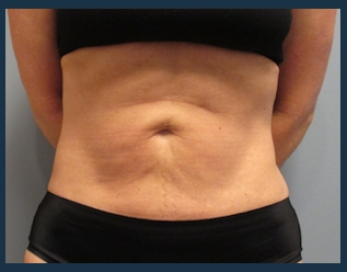Liposuction Before & After Patient #813
