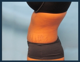 Liposuction Before & After Patient #822