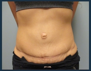 Tummy Tuck Before & After Patient #908