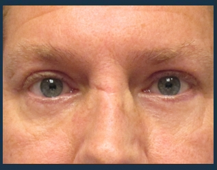 Eyelid Lift Before & After Patient #945