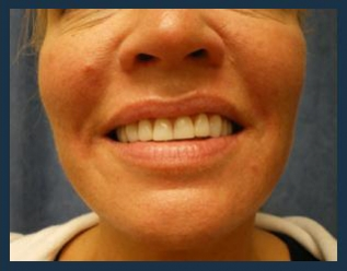 Juvederm Before & After Patient #970