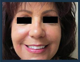 Radiesse Before & After Patient #976