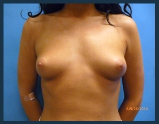 Breast Augmentation Before & After Patient #578