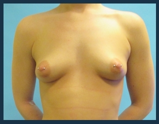 Breast Augmentation Before & After Patient #602