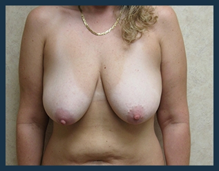 Breast Lift Before & After Patient #621