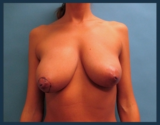 Breast Lift Before & After Patient #655