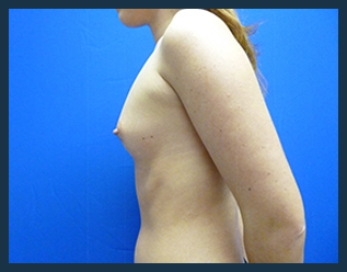 Breast Augmentation Before & After Patient #354