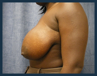 Breast Reduction Before & After Patient #677