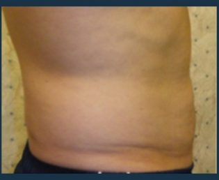 Liposuction Before & After Patient #758